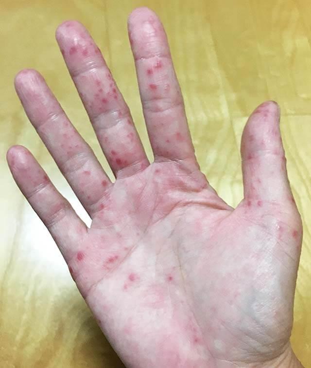 手足口病 症状